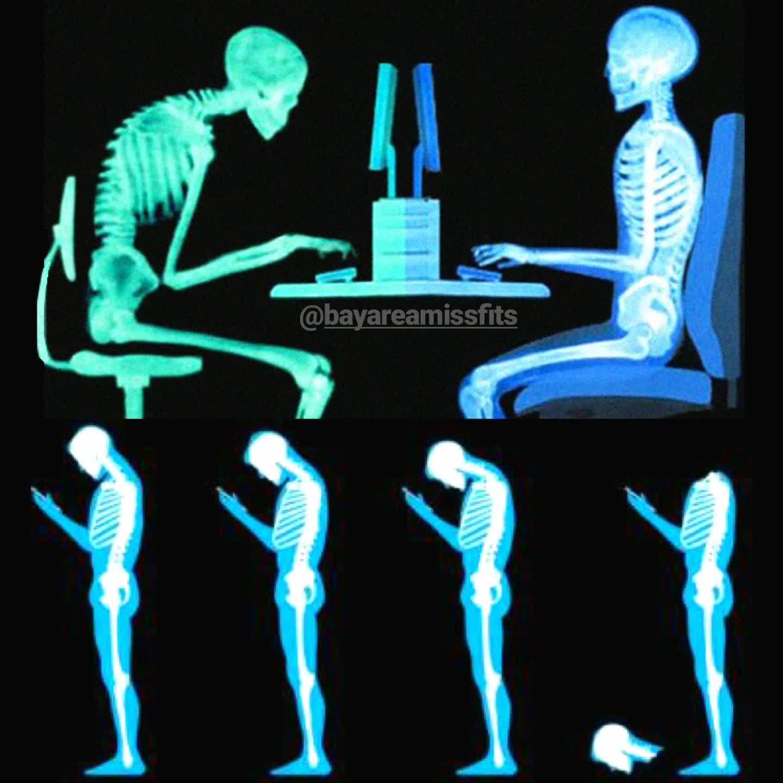 Bad posture graphic